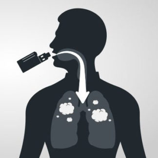 Direkte Lunge (DL)